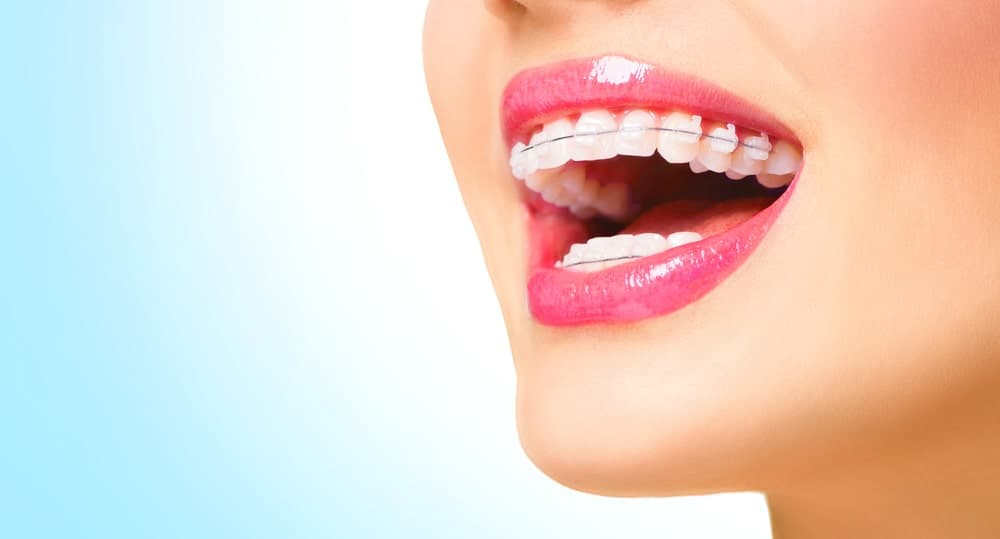 Woman smiles with mouth open wide displaying her ceramic braces.