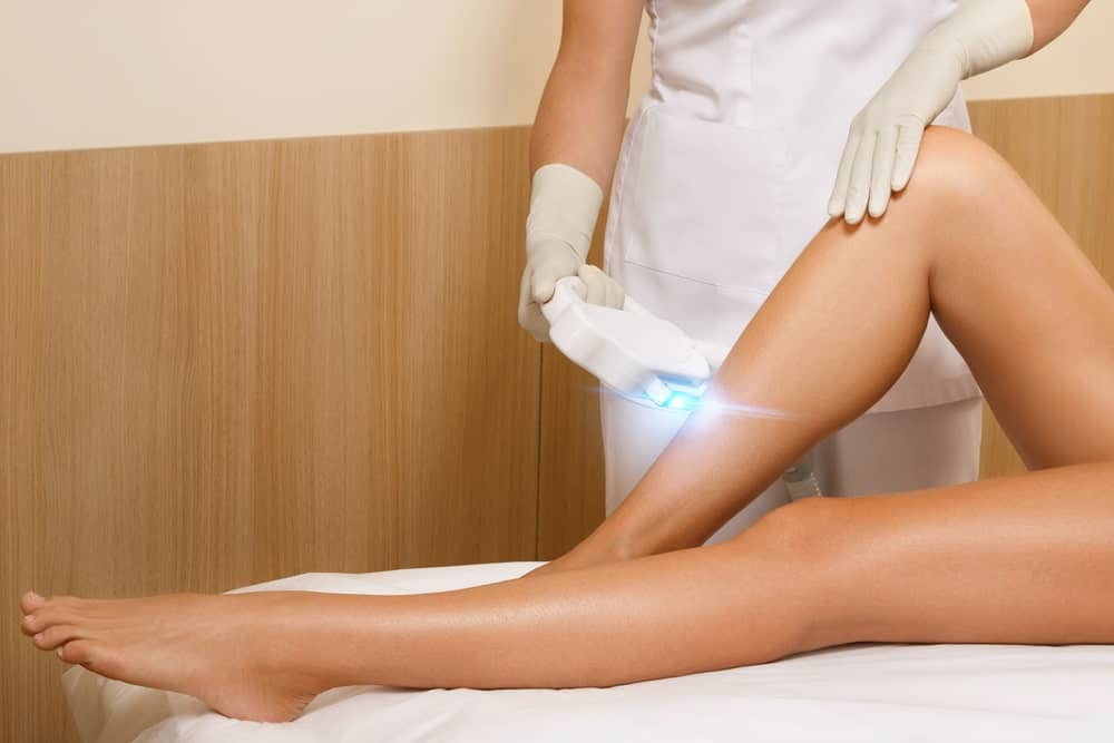 Laser hair removal as a permanent type of hair removal applied on a woman's legs.