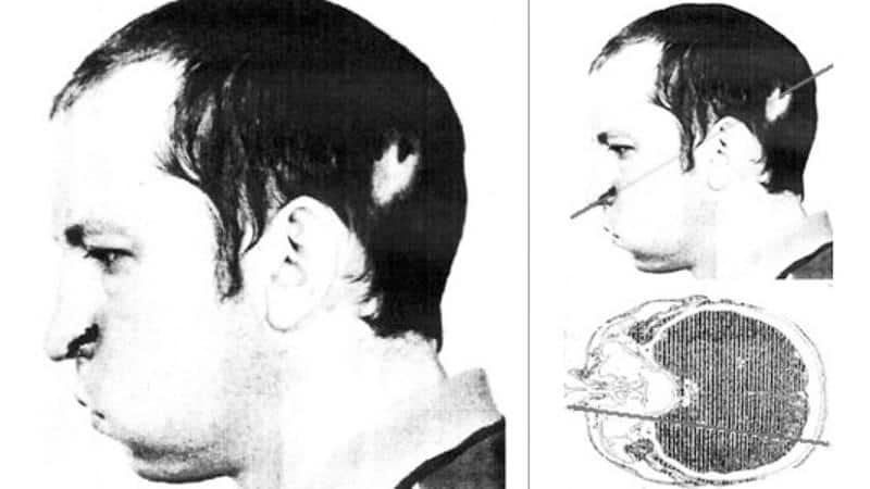 Anatoli Bugorski with proton beam through head