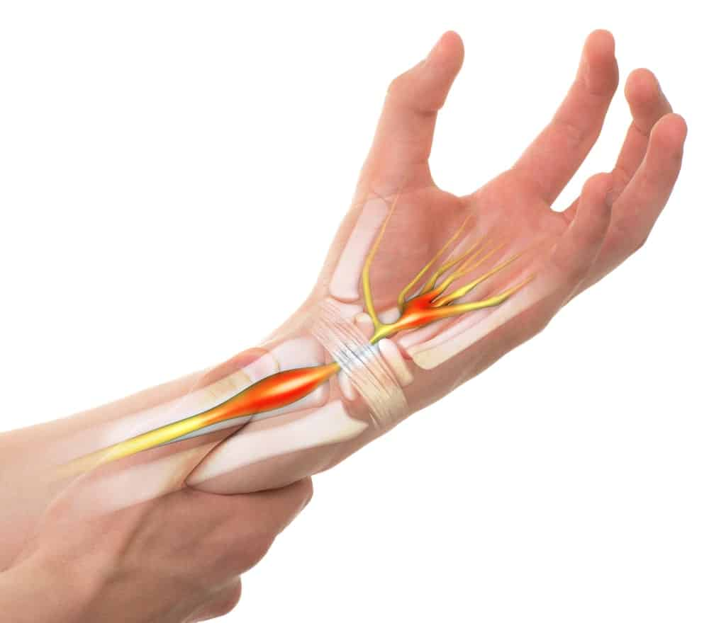 Carpal Tunnel Syndrome with Transparent Bones